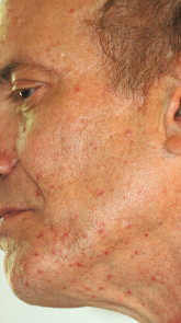 marks on the face of Mitch Miller after he was shot on Greyhound, June 1, 2009